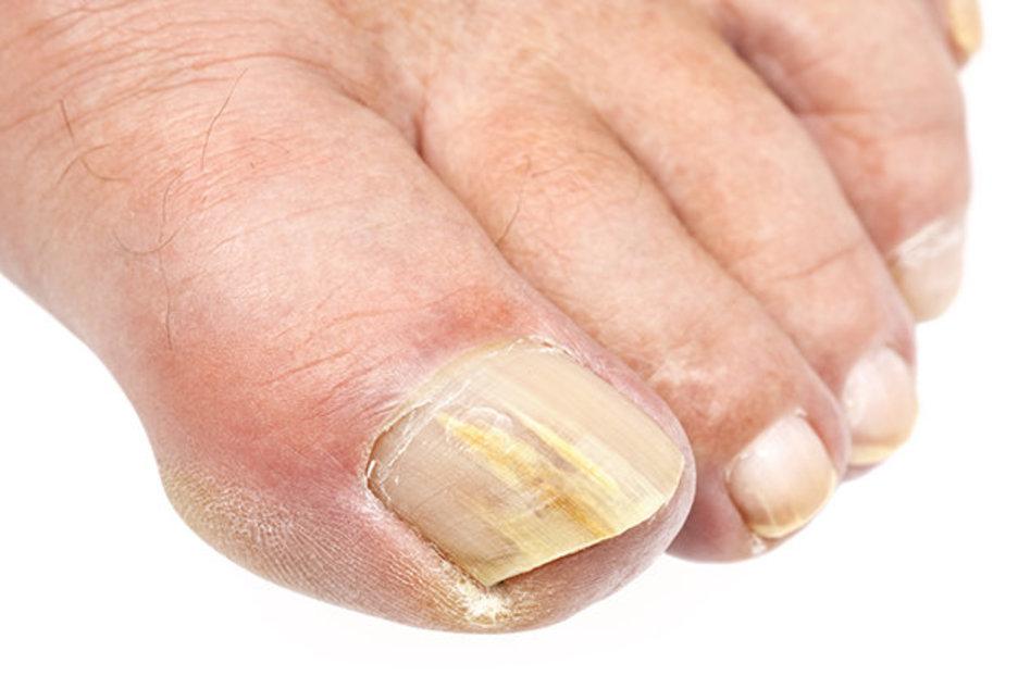 Eliminar el hongo en las uñas